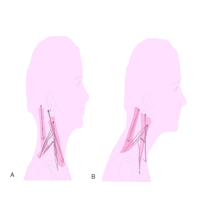 Diagram of correct head posture and poor head posture